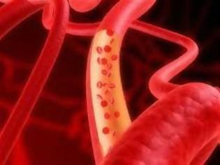 Δημιουργία νέων αιμοφόρων αγγείων από βλαστικά κύτταρα
