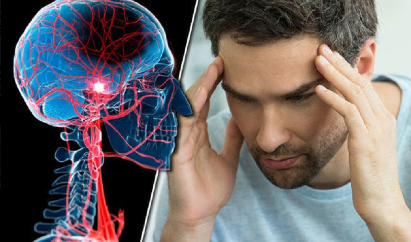 Η λοίμωξη με τον ιό SARS-CoV-2 συσχετίζεται με αυξημένη επίπτωση ισχαιμικών αγγειακών εγκεφαλικών επεισοδίων