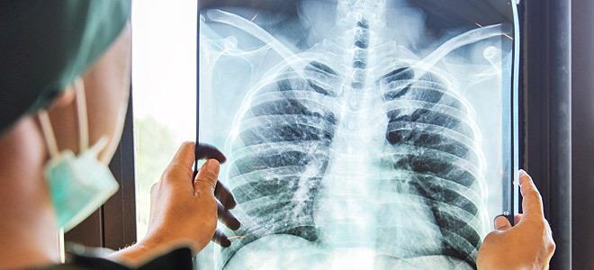Ανάχωμα στις εισαγωγές ΜΕΘ η ενίσχυση των πνευμονολογικών κλινικών