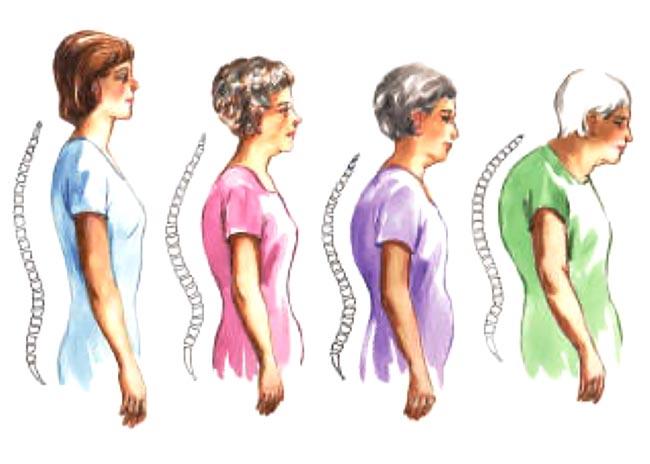 Οστεοπόρωση: Πότε μια επέμβαση μπορεί να αναδομήσει τα οστά