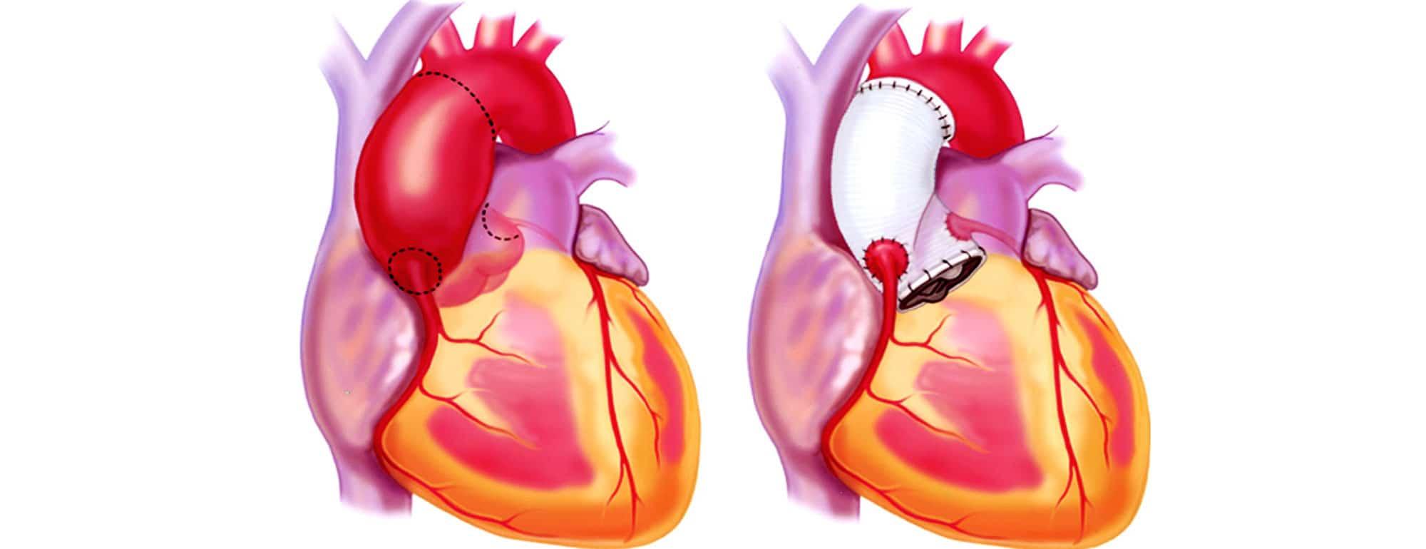 Τι είναι το ανεύρυσμα καρδιάς; Που οφείλεται;