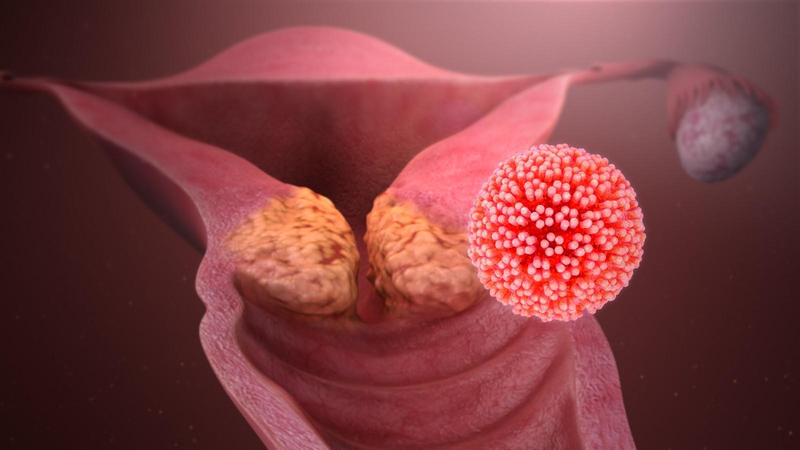 ΗPV: Υπάρχει εμβόλιο για τις προκαρκινικές αλλοιώσεις του τραχήλου της μήτρας;
