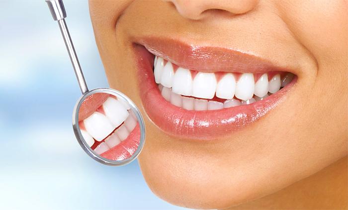 Λεύκανση δοντιών – Θεραπείες: Mύθοι και αλήθειες