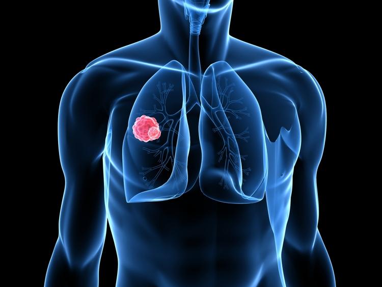 Η MSD στηρίζει το προτεινόμενο Σχέδιο Δράσης για τον καρκίνο του πνεύμονα