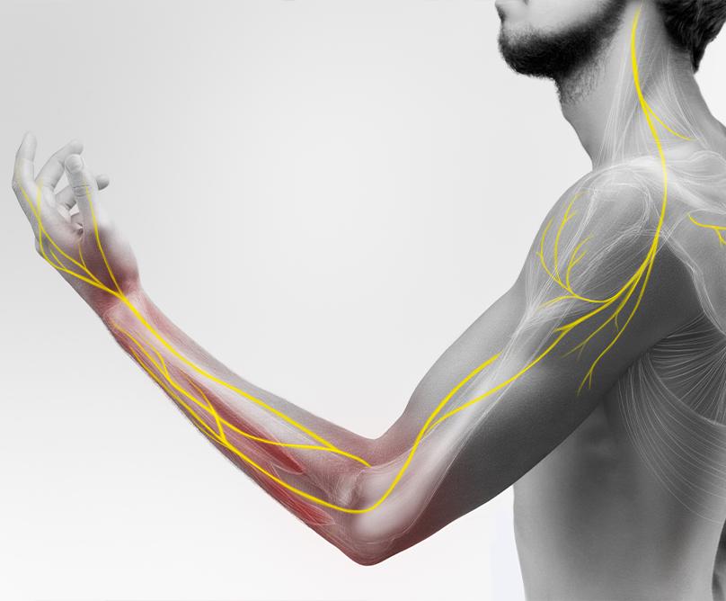 Ηλεκτρομυογράφημα: Μια λειτουργική εξέταση για τη μελέτη του περιφερικού νευρικού συστήματος και των μυών