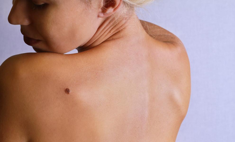 Καρκίνος του δέρματος: Ποια φάρμακα αυξάνουν τον κίνδυνο (βίντεο)