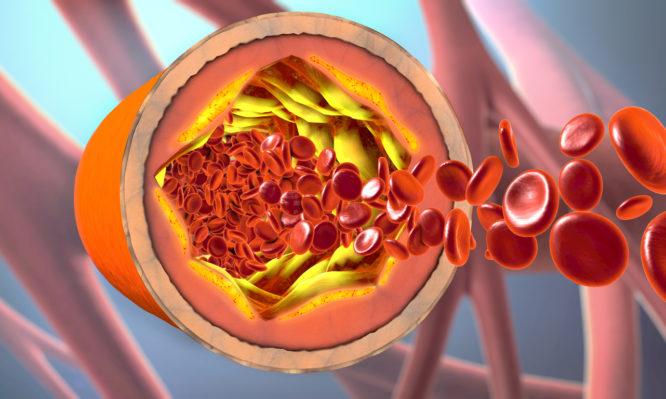 Ποιόν κίνδυνο κρύβει η καλή χοληστερόλη για την καρδιά;