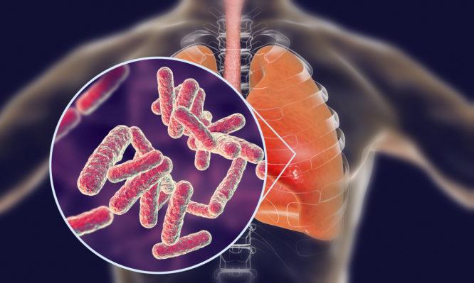 Άτυπη και τυπική πνευμονία: Ποιες είναι οι διαφορές;