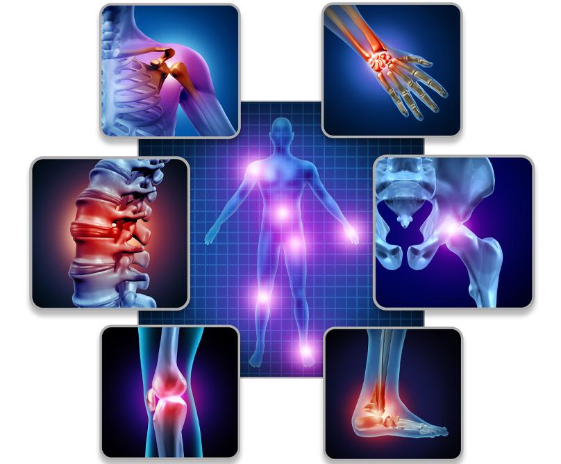 Ινομυαλγία: Όσα πρέπει να γνωρίζετε για τη «νόσο του μυοσκελετικού πόνου»