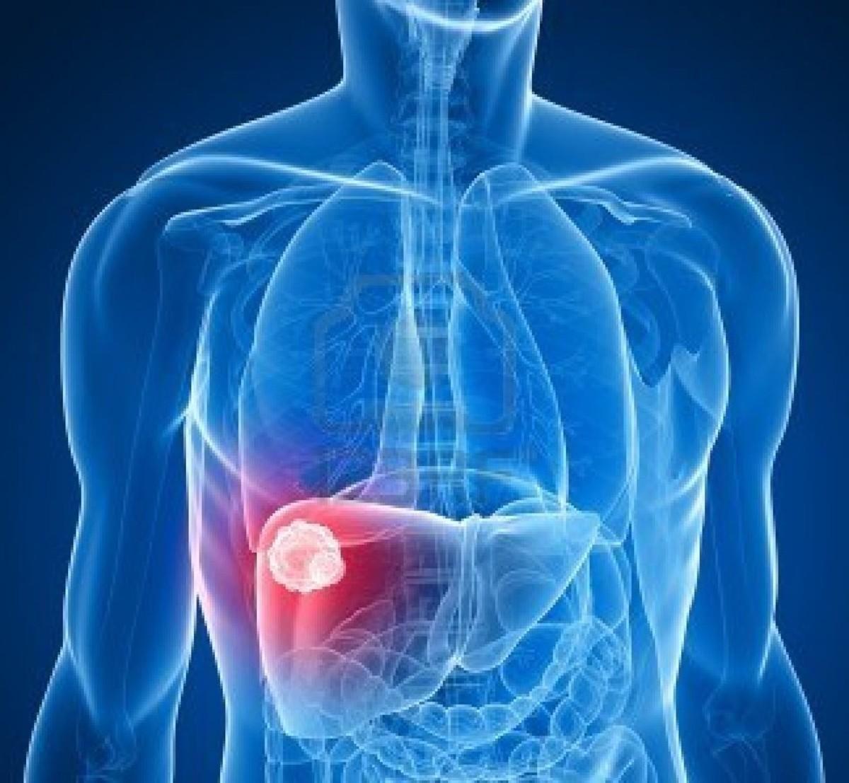 Κίρρωση του ήπατος: Συμπτώματα – πρόληψη -θεραπεία