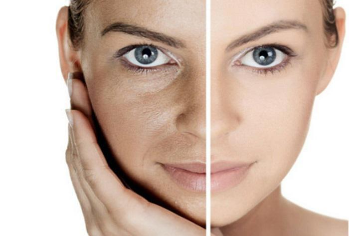Η ζάχαρη επιταχύνει την γήρανση και προκαλεί βλάβες στο δέρμα