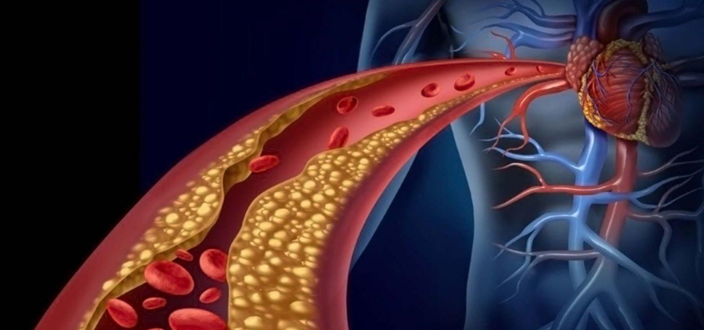 Θανατηφόρα στεφανιαία νόσος: Kι όμως μπορείτε να μειώσετε τον κίνδυνο!
