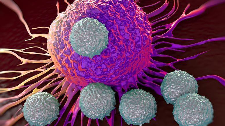 Πολλαπλό μυέλωμα – θεραπεία: Έλληνες ερευνητές οδήγησαν στην έγκριση νέου θεραπευτικού σχήματος για την αντιμετώπιση του