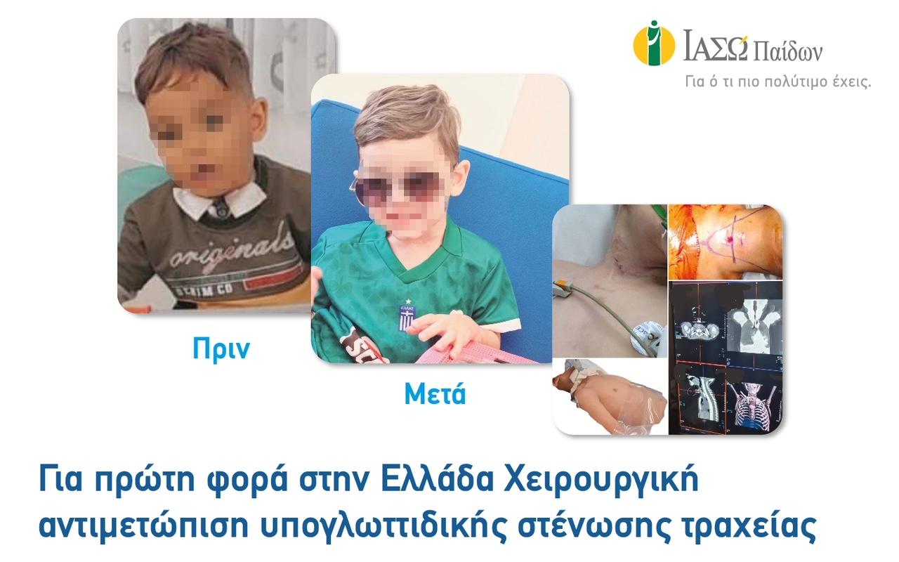 Για πρώτη φορά στην Ελλάδα χειρουργική αντιμετώπιση υπογλωττιδικής στένωσης τραχείας