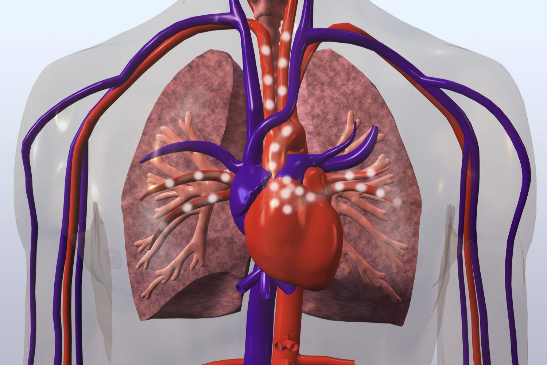 Πνευμονική καρδία: Ποια είναι τα κύρια χαρακτηριστικά της