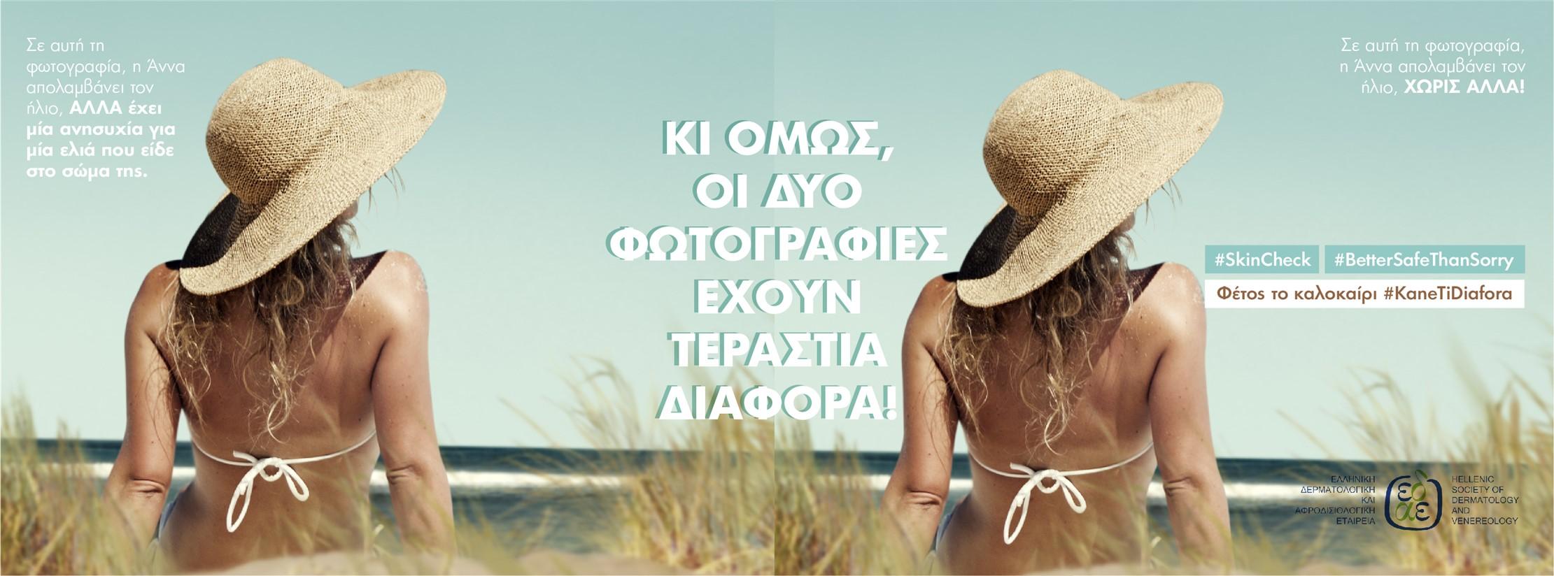 Μελάνωμα: φέτος το καλοκαίρι κάνε τη διαφορά!