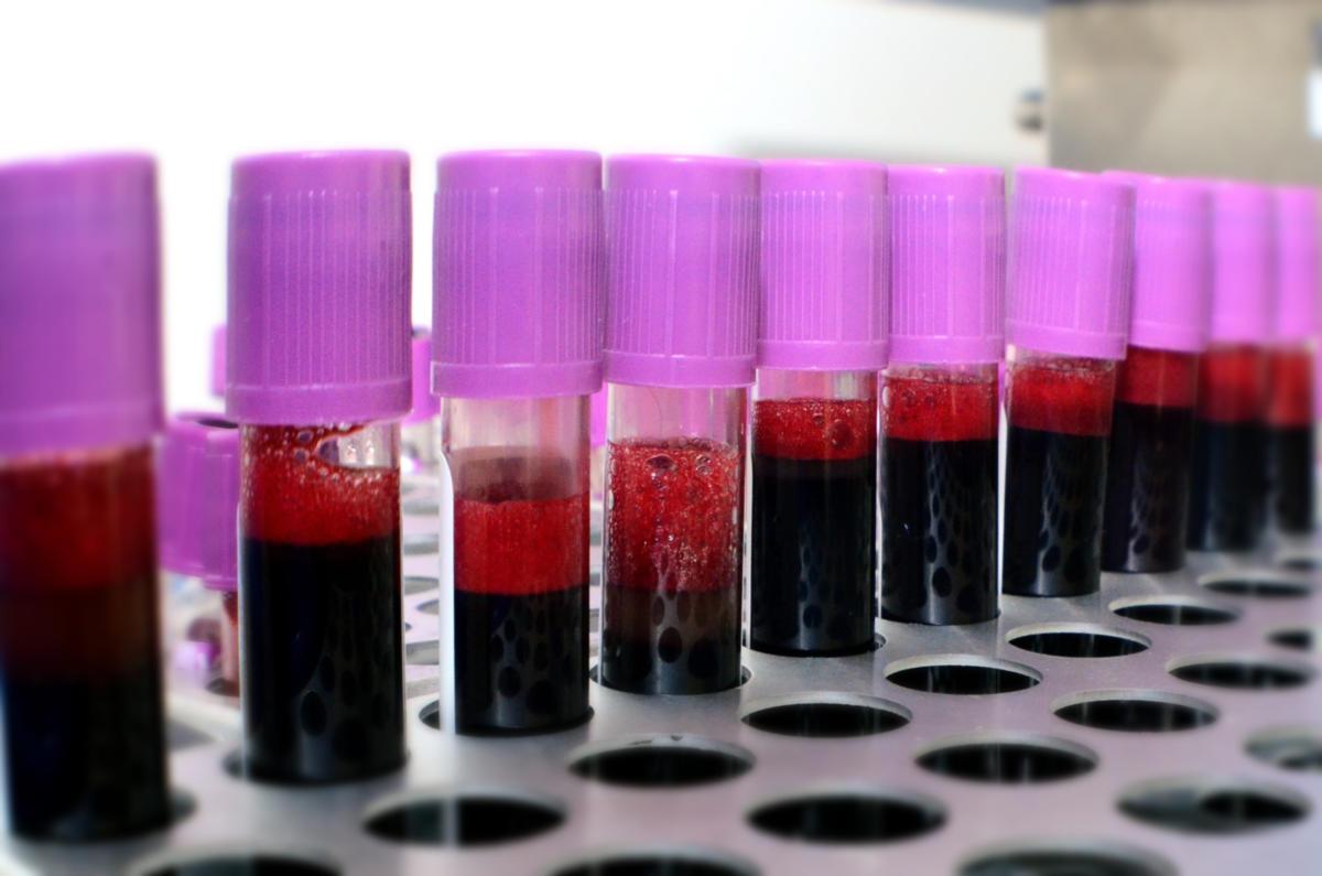 COVID-19: Σε παθολογική απόκριση αντισωμάτων αποδίδονται οι θρομβώσεις στους ασθενείς