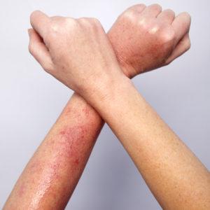 Δέρμα: Ο άγνωστος κίνδυνος από τα φυτά και τον ήλιο