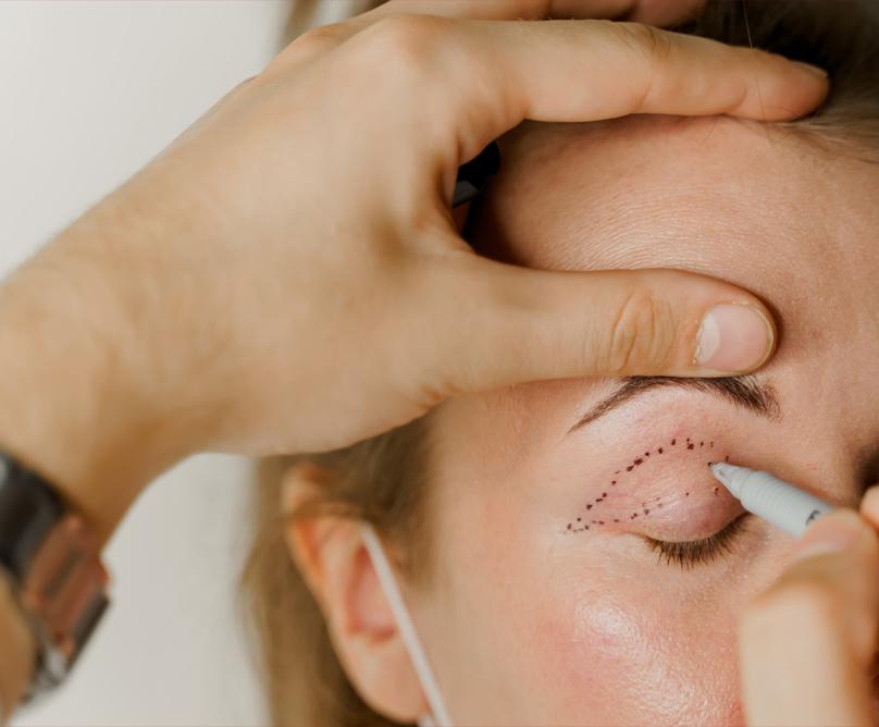 Βλεφαροπλαστική: Ανανεώστε το βλέμμα σας!