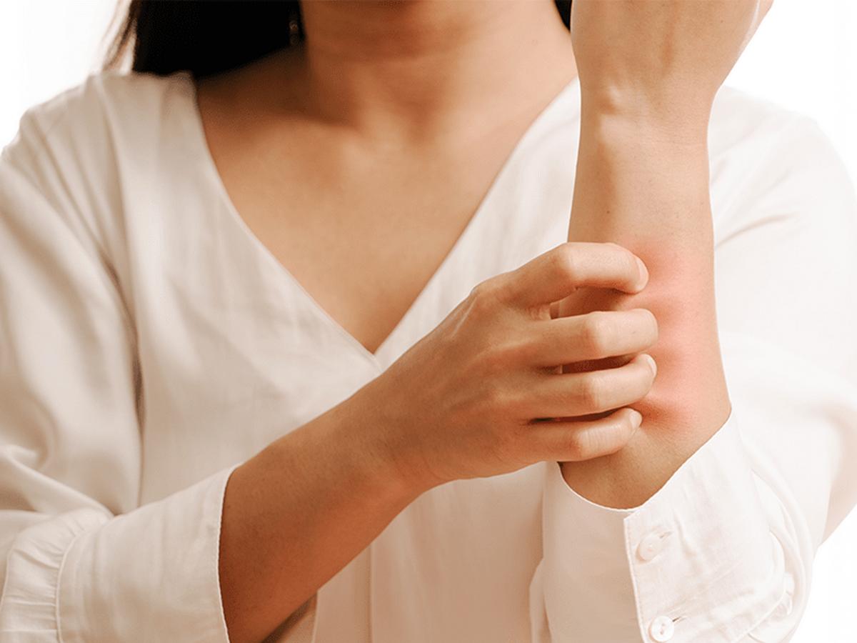 Πώς αντιδρά το δέρμα στις υψηλές θερμοκρασίες;