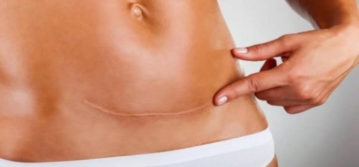 Καισαρική τομή: Γιατί αυξάνεται ο αριθμός των γυναικών που προτιμούν να γεννήσουν με αυτόν τον τρόπο;