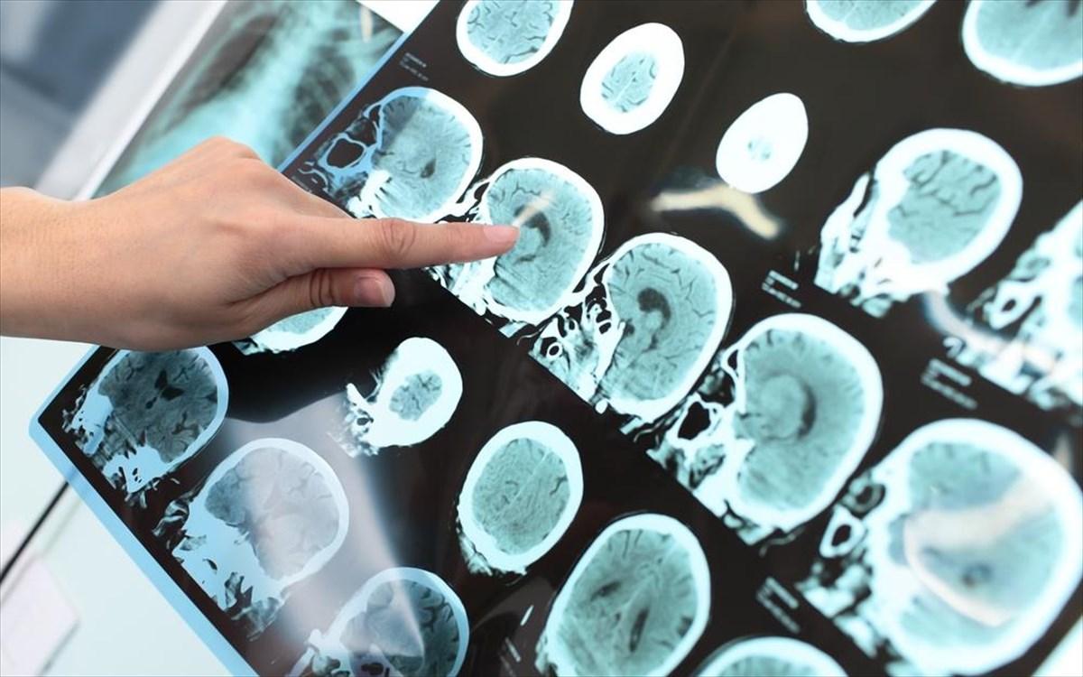 Ο αμφιβληστροειδής μπορεί να αποκαλύψει την πιθανότητα εμφάνισης Αλτσχάιμερ