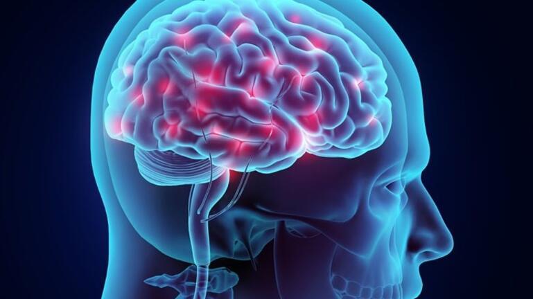 COVID-19 – Έρευνα: έρευνα: Βλάβη στον εγκέφαλο αφήνουν ακόμη και οι ήπιες περιπτώσεις