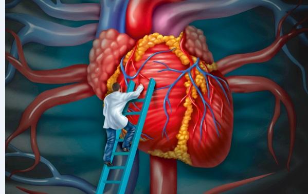 Διακαθετηριακή εμφύτευση καρδιακών βαλβίδων (TAVI) χωρίς ανάγκη χειρουργικής επέμβασης