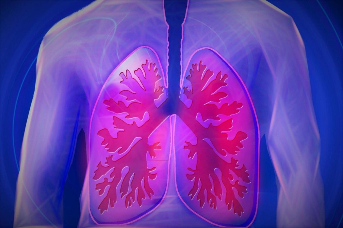 Σε ποια αίτια αποδίδεται ο καρκίνος του πνεύμονα στους μη καπνιστές;