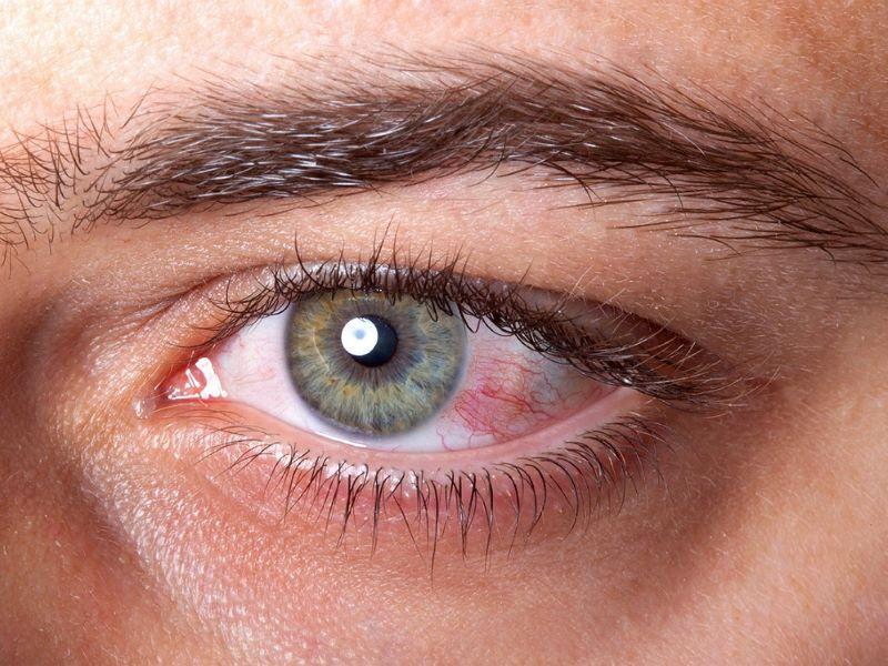 «Κάψιμο» στα μάτια: Τι δείχνει για την υγεία